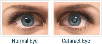 causes-of-cataracts,www.healthnote25.com