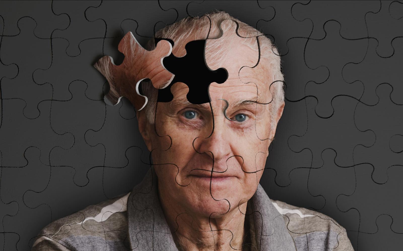 أعراض وأسباب وكيفية الوقاية من مرض الزهايمر