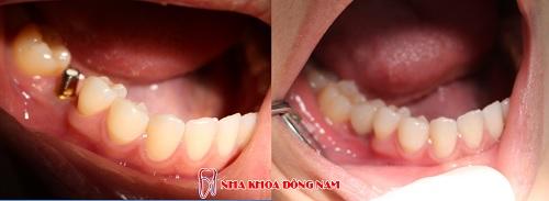 trồng răng cấm bằng phương pháp cấy ghép Implant -31