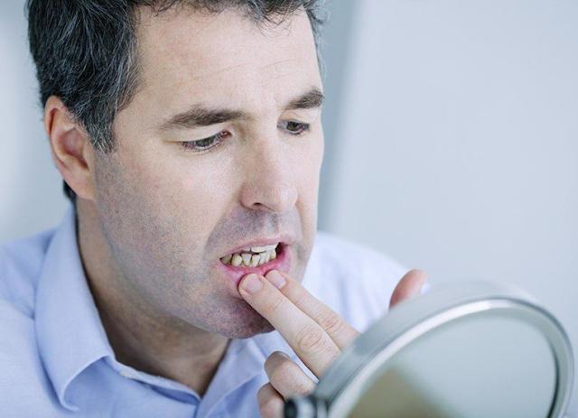 Waspada!! Dampak Penyakit Diabetes Bisa Menyebabkan Risiko Gigi Busuk
