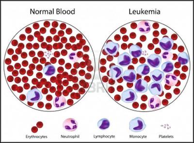 http://www.pusatmedik.org/2016/12/kanker-darah-definisi-jenis-gejala-penyebab-dan-pengobatan-serta-penanganan-penyakit-kanker-darah-menurut-ilmu-kedokteran.html