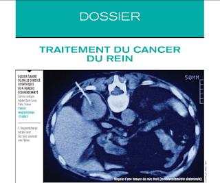 Dossier : Traitement du cancer du rein 33894483_1953889247968964_3676949999213608960_n