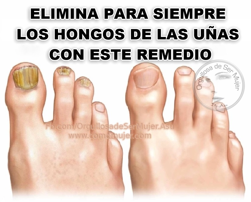 El engrosamiento de las uñas en los pies de la causa y el tratamiento de la foto