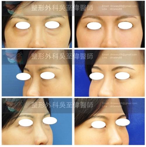 眼袋-%25E7%259C%25BC%25E8%25A2%258B-20170610-500