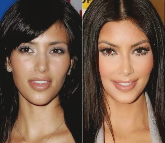 How Plastic Surgery Has Changed Celebrities