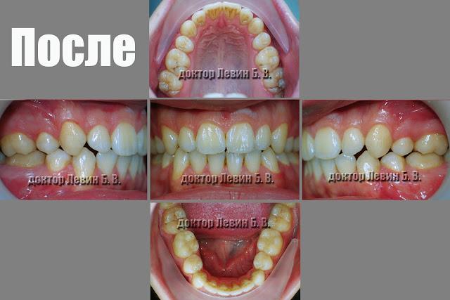 Три фото зубов характеризующие прикус пациента после завершения лечения брекетами.