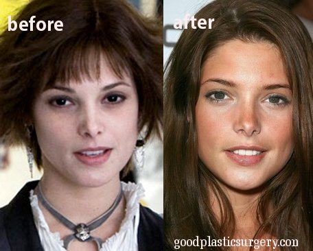 Kate Beckinsale Plastic Surgery Before And After 02 16 12