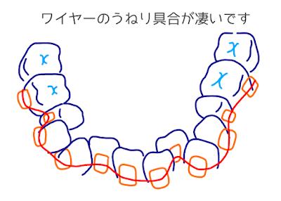 歯科矯正のイラスト ©さんがつの歯科矯正を始めます