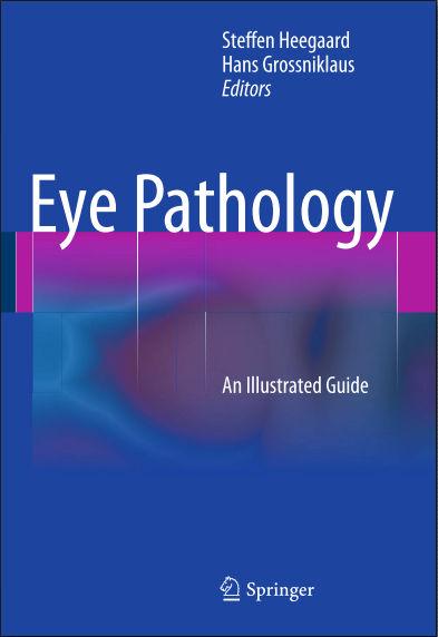 Eye Pathology An Illustrated Guide (2015) [PDF]- (Springer Publishing)