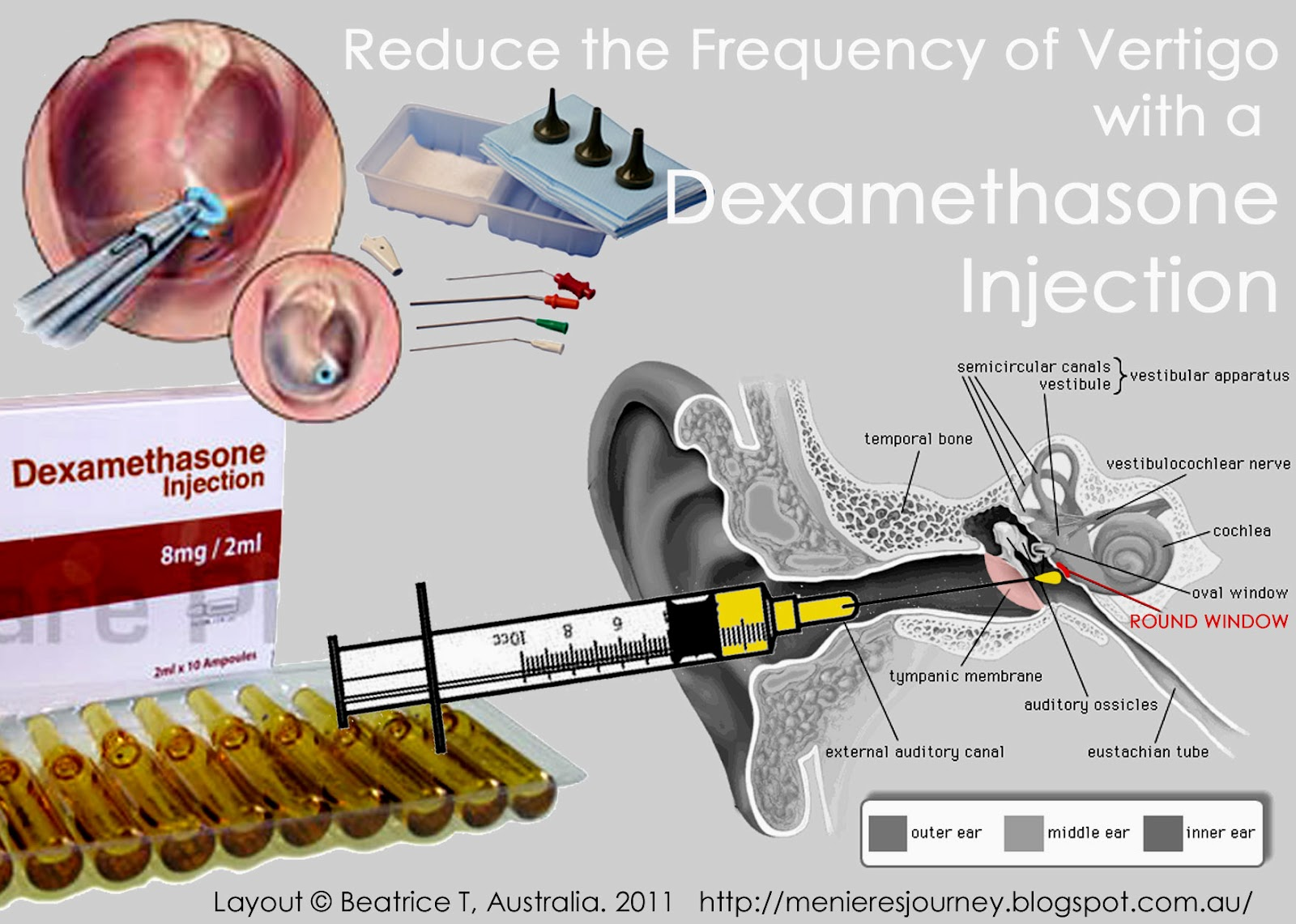 Menieres An Inner Ear Journey Reduce The Frequency Of Vertigo