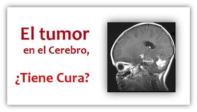 El Tumor en el Cerebro, Tiene Cura? - Un Testimonio de Sanidad con la Ayuda de Dios