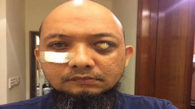 Kegelisahaan Novel Baswedan, Yang Tadinya Apresiasi Jokowi Kini Kecewa Lantaran....
