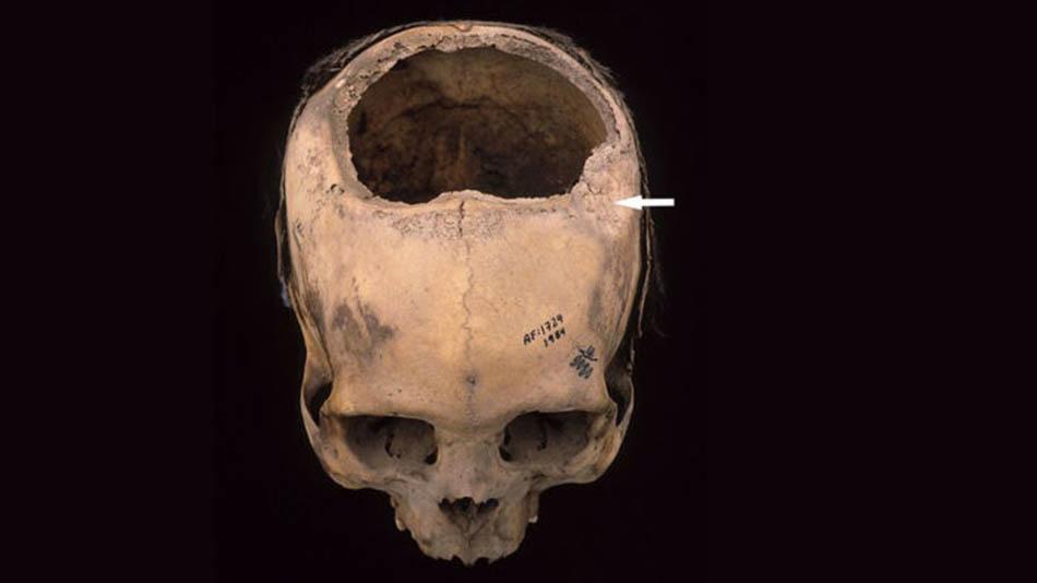 Antik tarih, Bilimsel, Antik medeniyetler, A, İnkalar, İnka toplumu, İnka'larda gelişmiş beyin ameliyatı, İnka'larda kranial anatomi, İnka toplumunda tıp, A, İnkalar hakkında bilinmeyenler