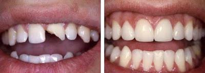 Hàn trám răng cửa bị mẻ