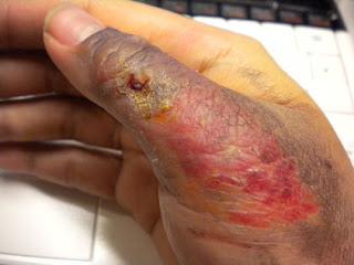 merawat luka bernanah