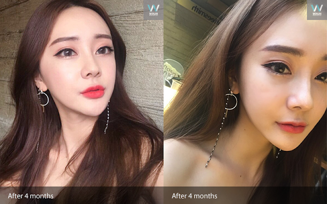 짱이뻐! - Complete Solution (Feat Korea Face Contouring, Eye, & Breast Surgery)
