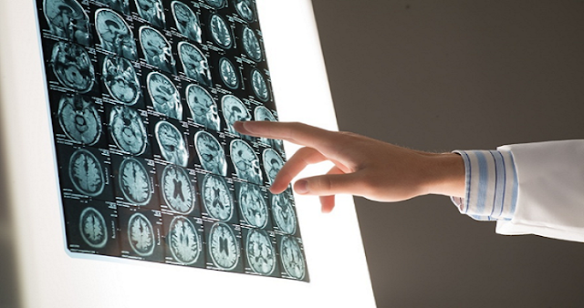 Why Do You Need to Hire a Traumatic Brain Injury Attorney?
