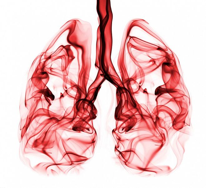 Bloody Cough Hemoptysis Medical Consulting
