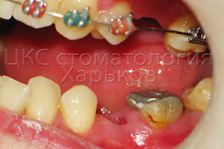 Зуб восстановлен культевой вкладкой