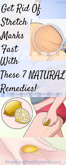 GET RID OF STRETCH MARKS FAST WITH THESE 7 NATURAL REMEDIES
