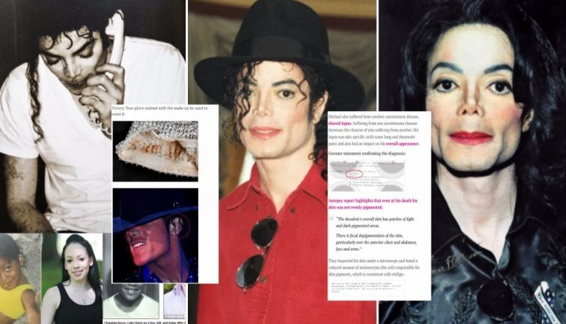 Adakah Ini Bukti Michael Jackson Sebenarnya Tak Buat Pembedahan Plastik Untuk Jadi 'Orang Putih'?