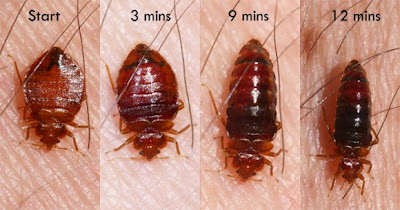 bedbugbite-org-Bed-Bug-Bites-Pictures