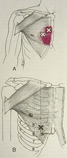MIOTERAPIA