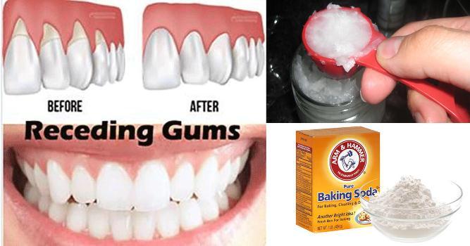 Can you regrow receding gums
