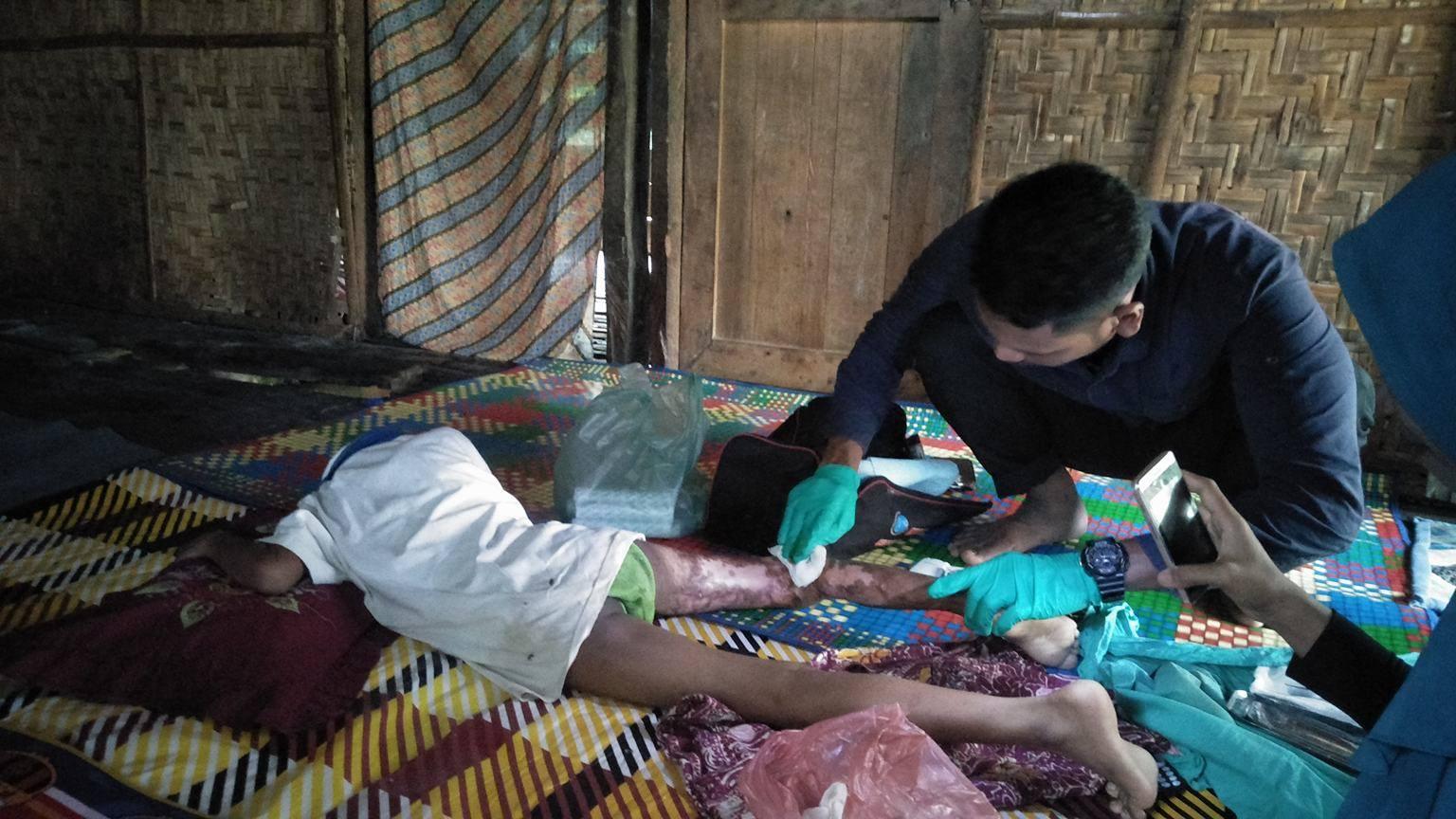 Lembaga Peduli Dhuafa Melakukan Pengobatan Tahap 2 Untuk Anak Luka Bakar dari Keluarga Tuna Netra