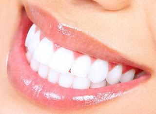 Memutihkan Gigi pada bulan Ramadhan