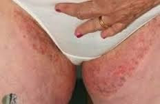 Image Mengobati gatal gatal 3 hari sembuh