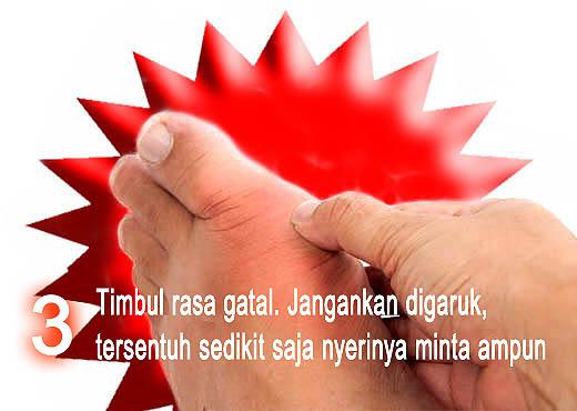 Gejala penyakit asam urat rasa gatal pada pembengkakan