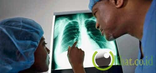 Pulmonary Lenticellular Ichthyosis