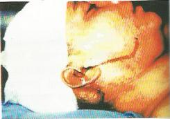 Cairan Serebrospinal Pada Telinga
