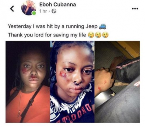 Nigerian lady thankful to God after she survived being hit by a speeding vehicle