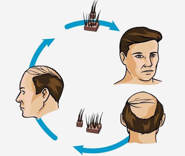 Hair Fall Control Oil (बाल झड़ने का नियंत्रण तेल)