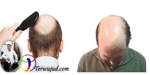 Baldness Hair
