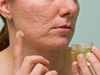 10 Cara menghilangkan bekas jerawat paling ampuh