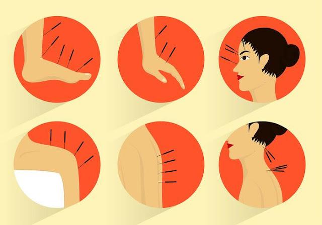 Akupunkturun Etkileri