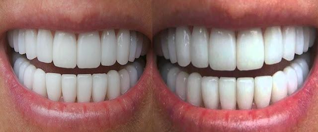 1 Günde Diş Beyazlatma Yöntemleri