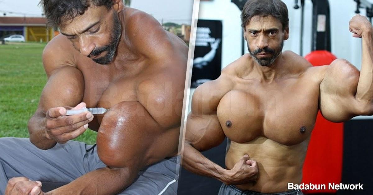 Valdir Segato musculos enfermo synthol brasil hulk imagenes