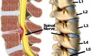 Sciatica nerve or Arq un Nisa