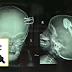 Kanak-Kanak Terjatuh Dari Atas Katil Ketika Bermain, Kepala Tertusuk Pin Palam Elektrik