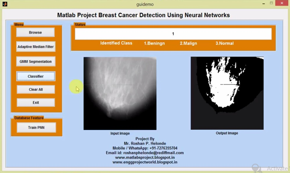 Matlab Project Breast Cancer Detection Using Neural Networks Full