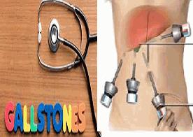 Gallbladder Surgery - different Treatment to Dissolve Gallstones!