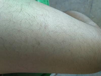 Hasil Pemakaian Biotin Natrol (100tablet) 10.000mcg Pada Rambut Lengan Tangan