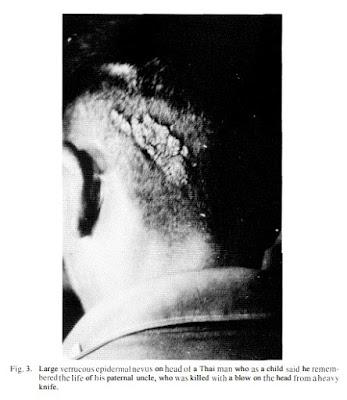 Homem com verruga na cabeça, consequência de sua vida passada. Marca de nascença