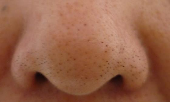This One Easy Trick Will Remove All Annoying Blackheads
