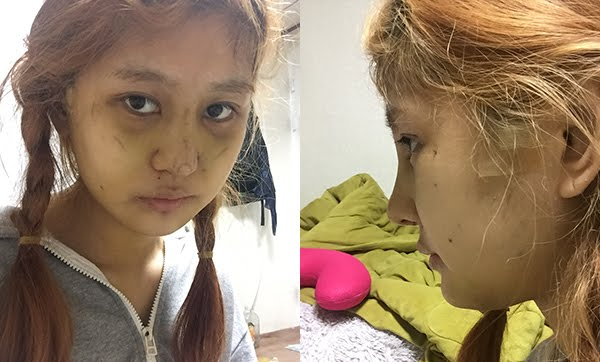 짱이뻐! - People Did Plastic Surgery Because Of This?