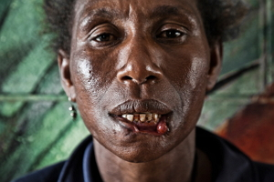 Crying Meri: Violence Against Women in Papua New Guinea